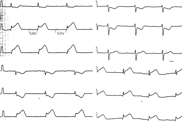 EKG-Fallbeispiele